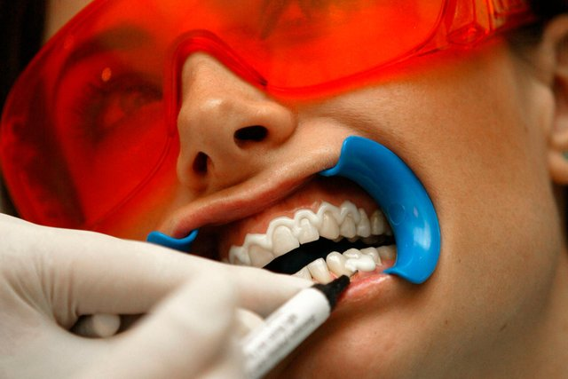 Teeth-whitening procedures can be pricey (Picture: Sion Touhig/Getty Images)