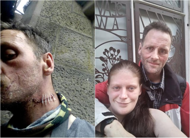 Robert Young needed stitches to his neck following the attack, witnessed by his partner Lynn O'callaghan (pictured with Robert).